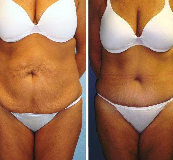 Не хирургические способы похудения